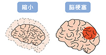 主要な認知症の種類と原因